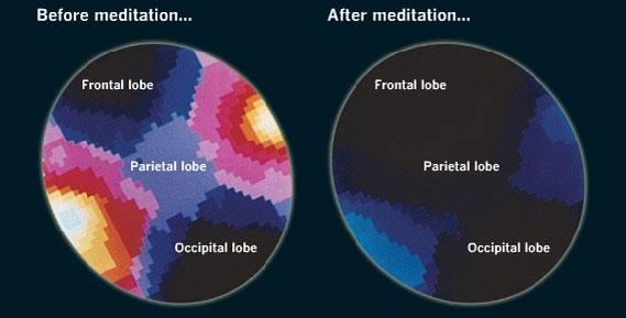 BetaWaves meditation